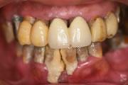最新の歯周病治療『歯周内科治療』