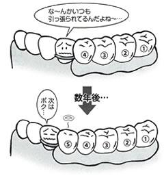 従来の入れ歯と最も違う点は、歯を守る入れ歯