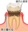 歯周炎とは・・・